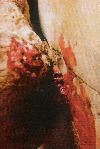 Brazo cortado. La operación fue laboriosa por la dificultad a la hora de cotar los huesos